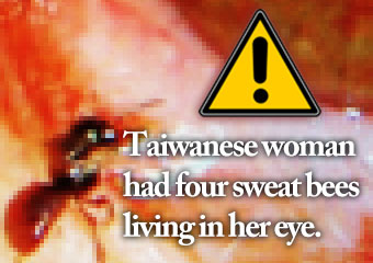 一名台灣女性的眼.. Taiwanese woman had four sweat..